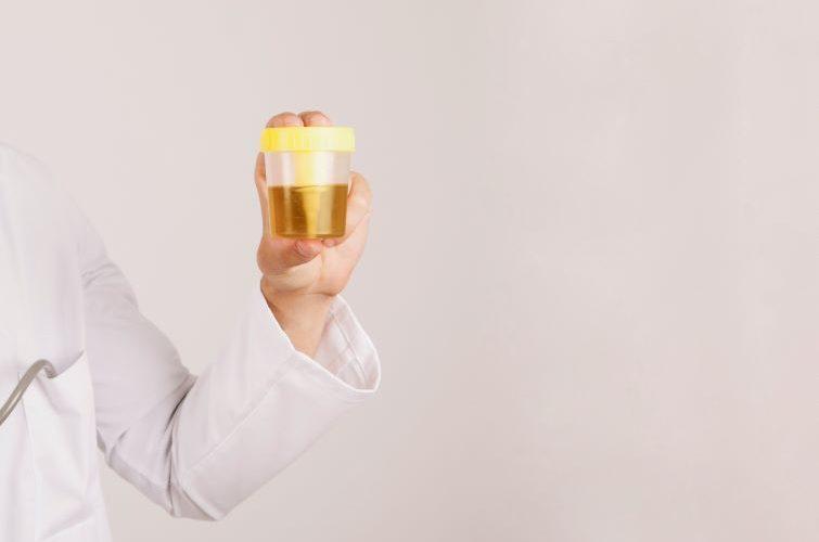 urine organic acid